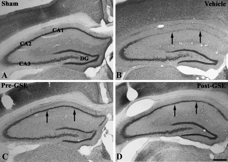 Hiệu quả bảo vệ tế bào thần kinh của dịch chiết hạt nho
