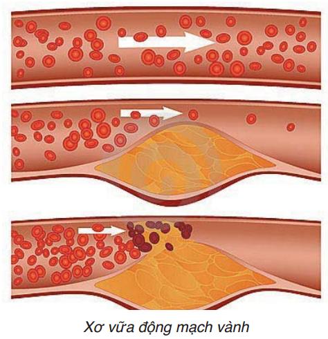 Cholesterol cao và nguy cơ tim mạch