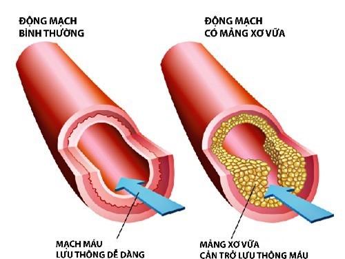 Cholesterol tăng cao gây chứng xơ vữa, tắt mạch máu