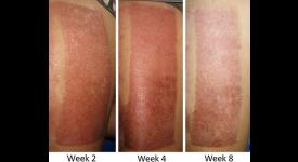 Gel chiết xuất thảo dược giảm sẹo trong ghép da