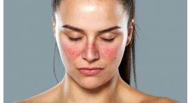 Omega 3 có thể ngăn ngừa bệnh lupus ban đỏ